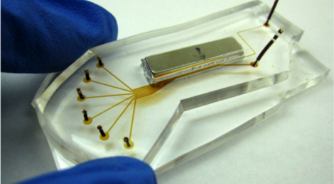 Cell Enrichment Microfluidic Chip for Lung Cancer Cell Counting