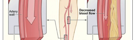 Smartphone-Enabled Hemodynamic Monitoring for Patients with Peripheral Artery Diseases